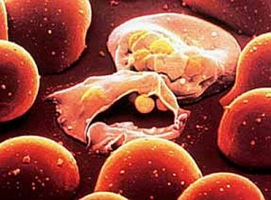 plasmodium_falciparum